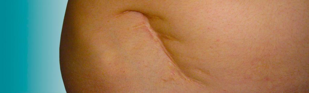 Correccion Mejora de Cicatrices - Cirugia Estetica Secundaria - Dr. Joaquim Suñol