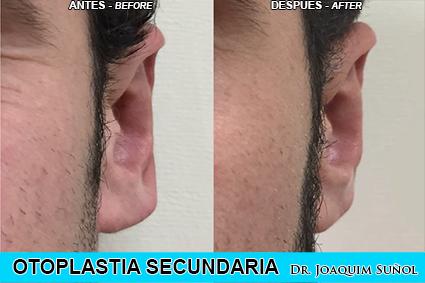 Otoplastia Secundaria - corecion Lobulos - Cirugia Estetica Secundaria - Dr. Joaquim Suñol