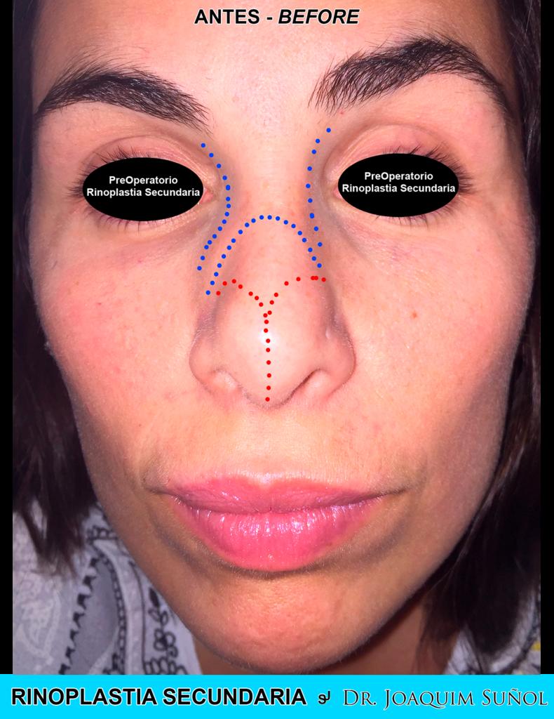 rinoplastia secundaria cirugia plastica joaquim sunol resultados ejemplos 3