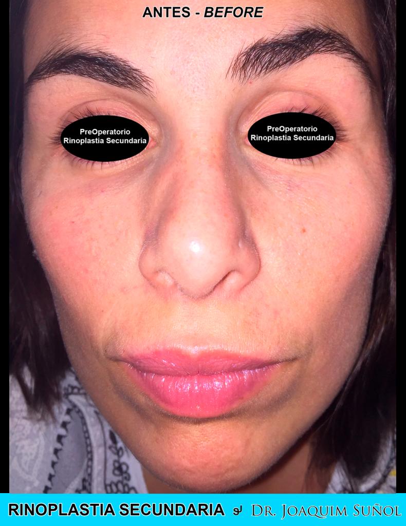 rinoplastia secundaria cirugia plastica joaquim sunol resultados ejemplos 4