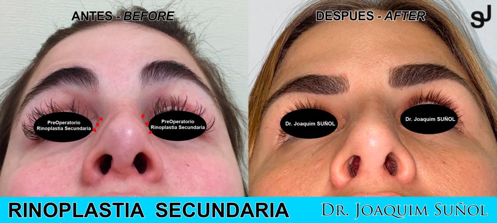 rinoplastia-secundaria-ejemplo-joaquim-sunol-cirugia-plastica-estetica